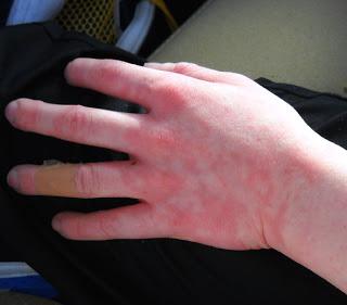 отек глаз при аллергии что делать