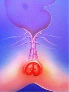 болезненный осмотр у проктолога