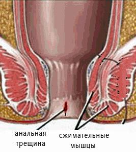 shlyuhi-s-buferami-porno