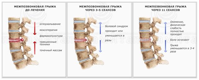 Лечение межпозвонковой грыжи до 15 мм - без операции! / Медикус ...