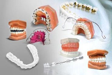 брекеты, виды, зубы
