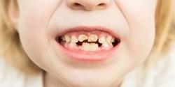 Хуже кариеса: новое широко распространенное заболевание «меловые зубы»