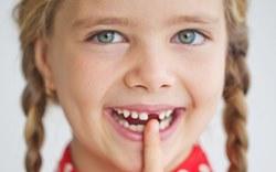 Специалисты объяснили, зачем лечить молочные зубы, если они все равно выпадут